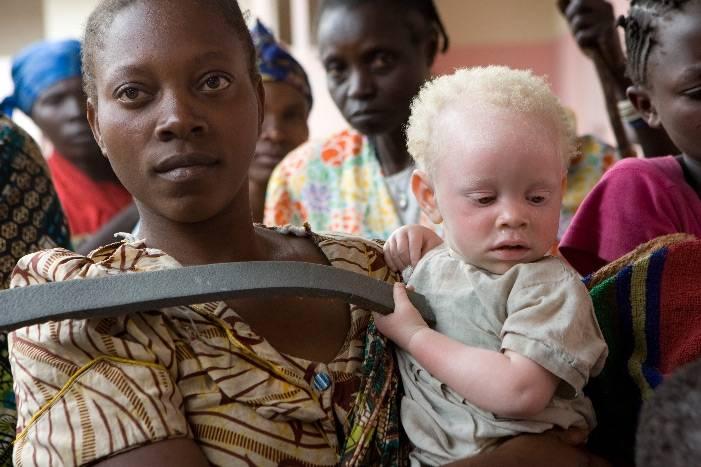 En mor med sitt barn på armen, barnet har albinisme.